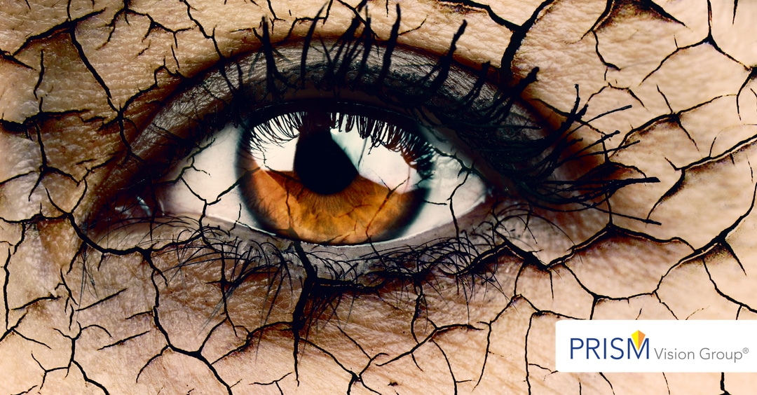 Dry Eyes from Cholesterol Medications?